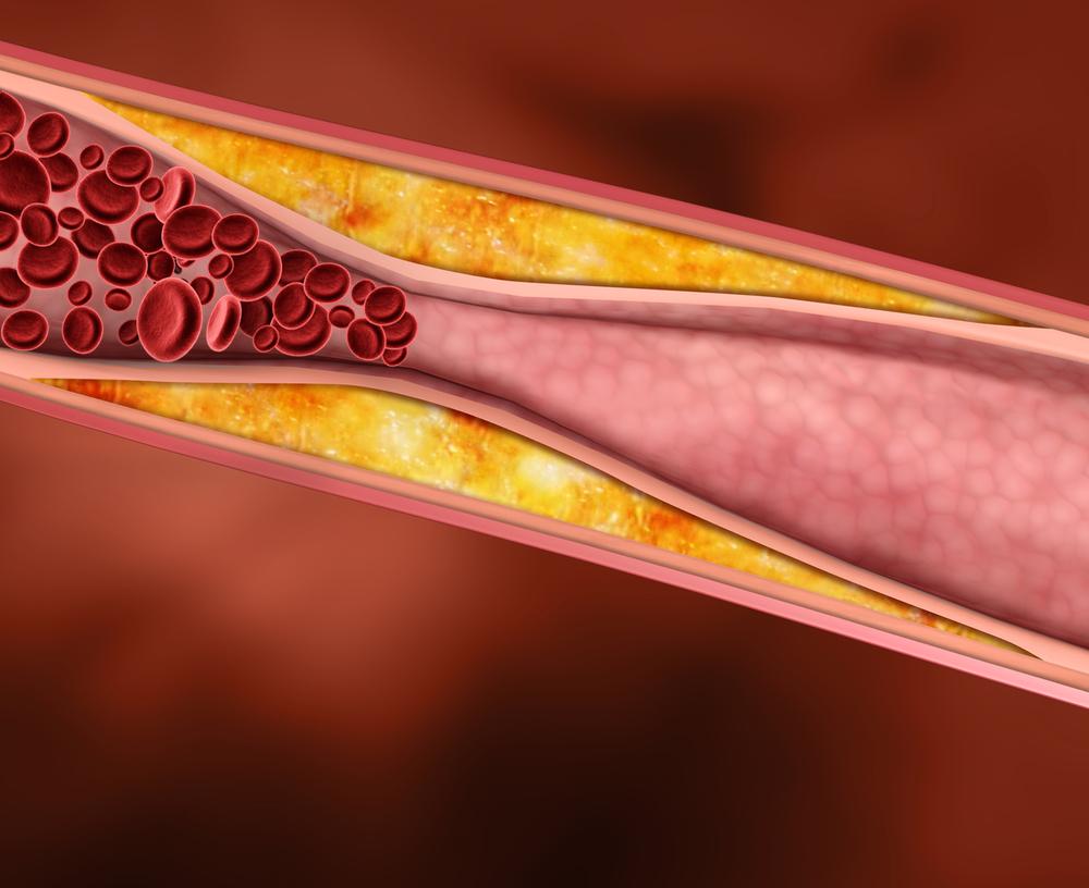 Атеросклероз аорты и её ветвей лечение